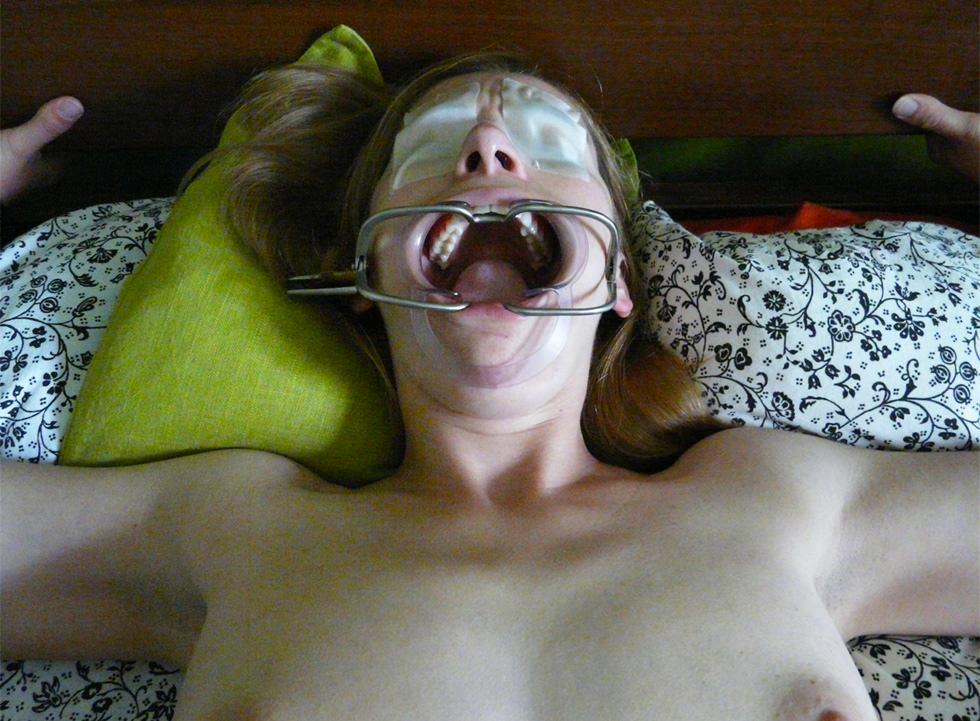 La mordaza metálica y el abrebocas