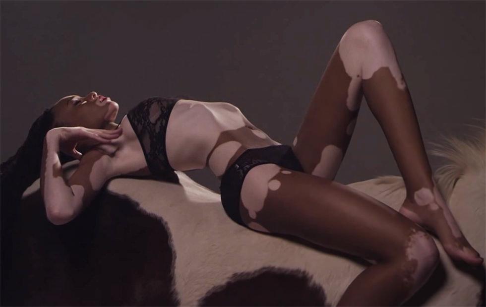 Chantelle Harlow, la modelo con vitiligo