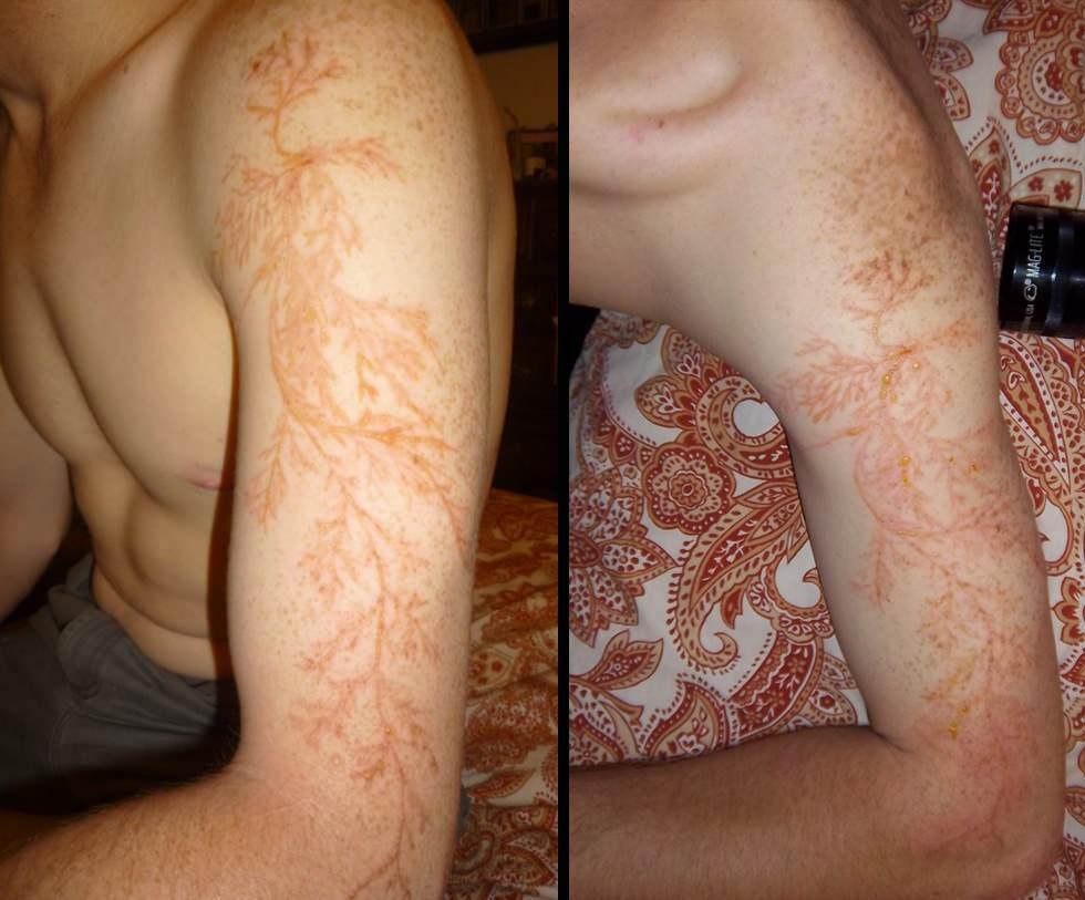 Figuras de Lichtenberg, el tatuaje natural
