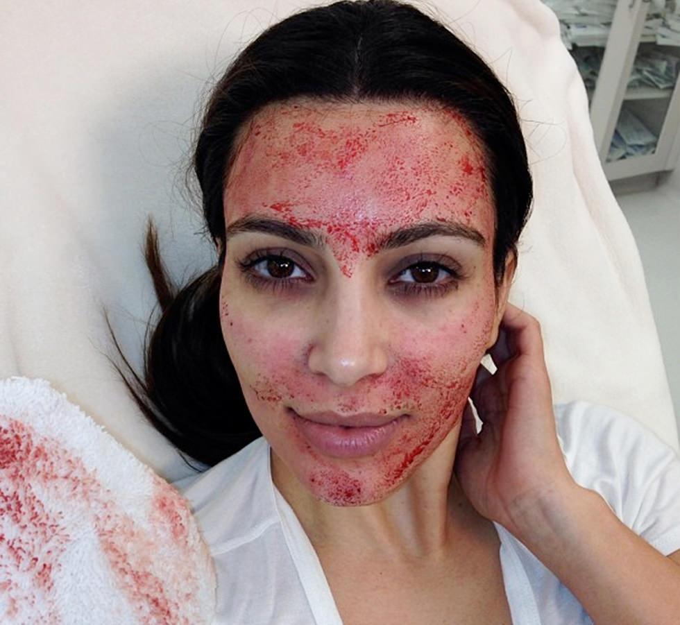 Kim Kardashian inventa el facial de sangre