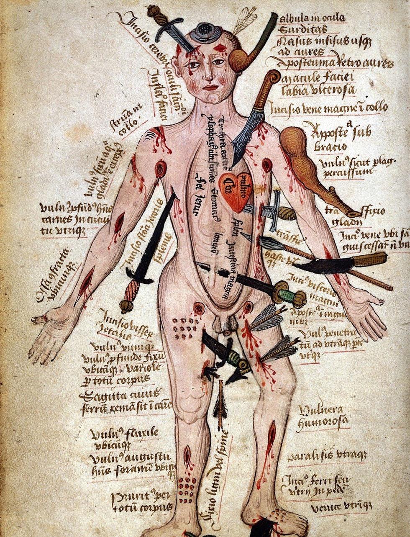 Guía práctica medieval para tratar heridas