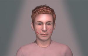 Usando el acné juvenil contra el vandalismo