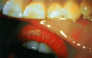 Así es un beso desde dentro de la boca