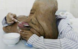 El hombre elefante chino